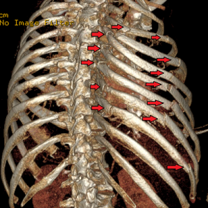 bone pain in chest